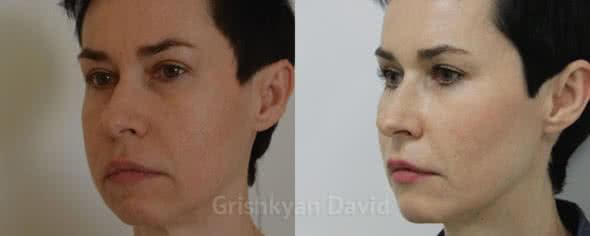 Липофилинга лица до и после фото | Клиника Доктора ...