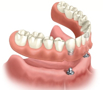 implant overdentures by Houston dentist Dr. Coleman provide stability