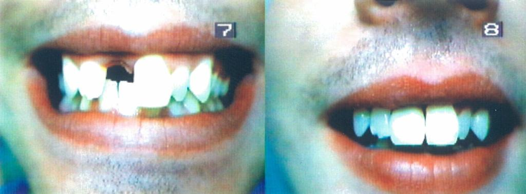 Before and After Flexible one tooth Upper Denture