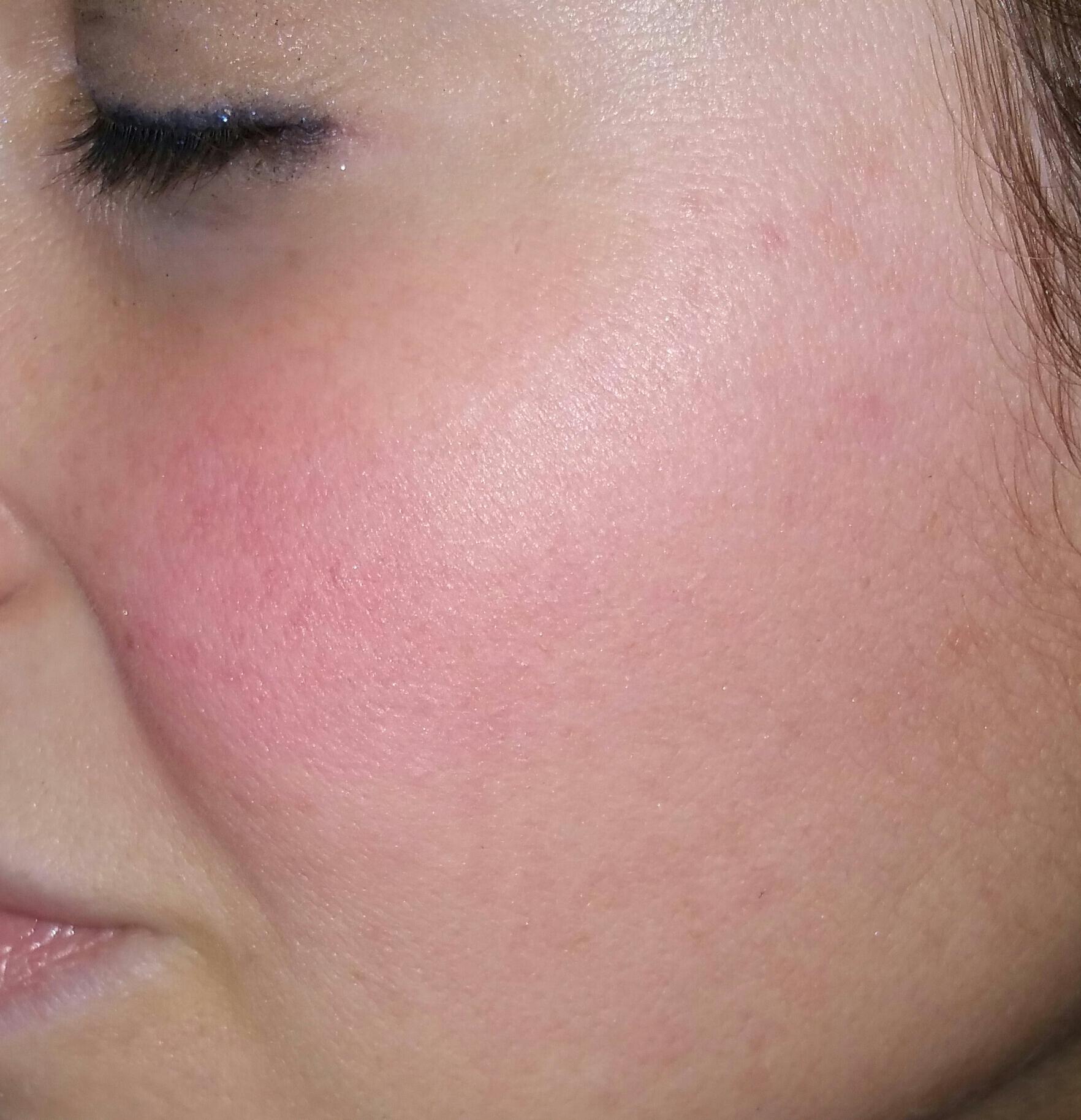 Natural Pink Skin Tone