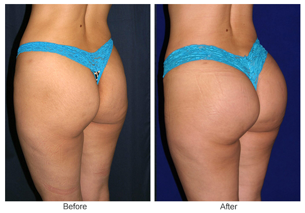 Before & After Buttock Augmentation 2 – RQ