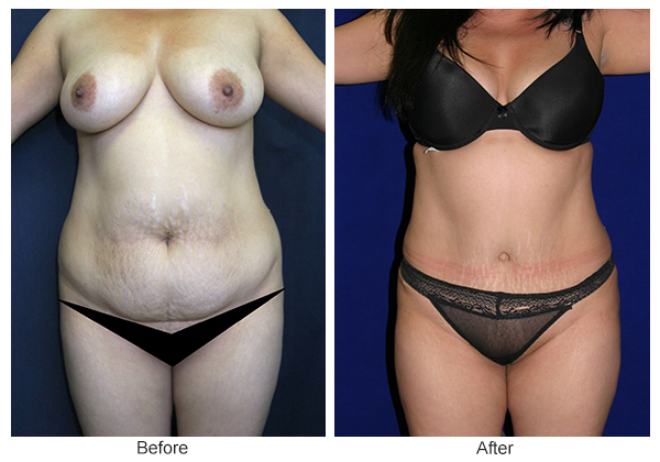 Before & After Tummy Tuck 11  – F