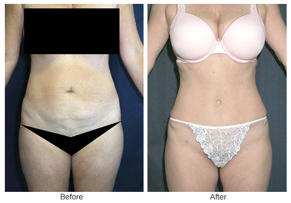 Before & After Tummy Tuck 6  – F