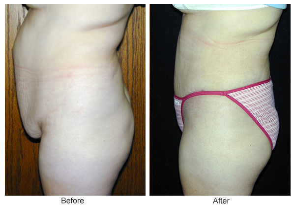 Before & After Tummy Tuck 9  – L