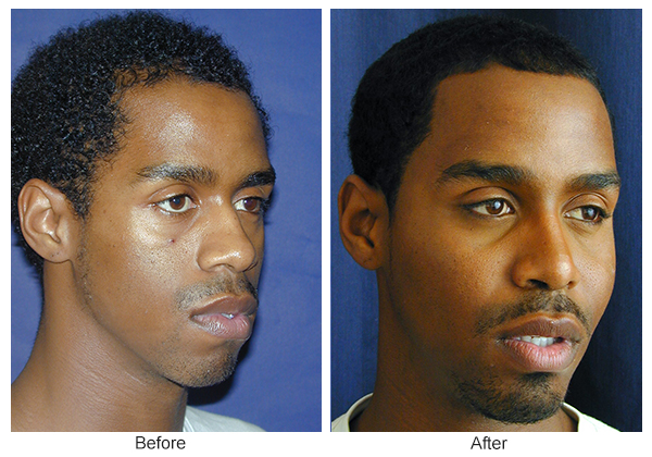 Before and After Cheek Implant 3