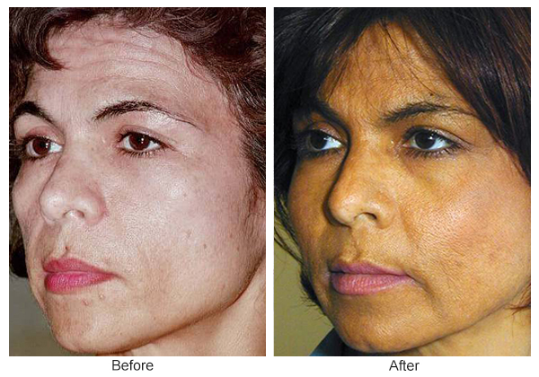 Before and After Cheek Implant 4 – LQ
