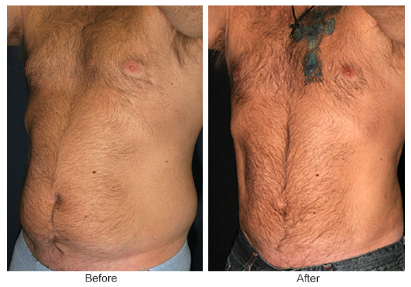 Before and After Liposuction 3 – LQ