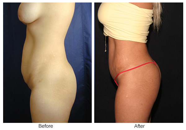 Before and After Liposuction 5 – L