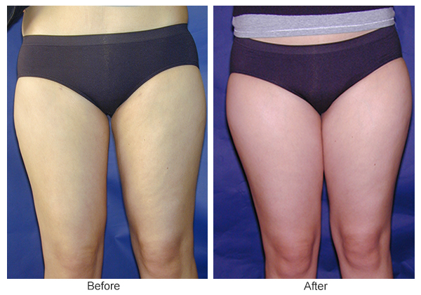 Before and After Liposuction 6 – F