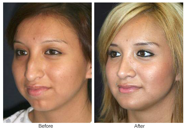 Before and After Rhinoplasty 3 – LQ