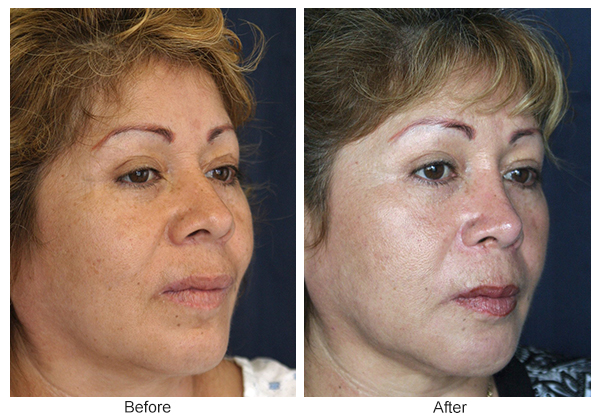 Before and After Rhinoplasty 5 – RQ