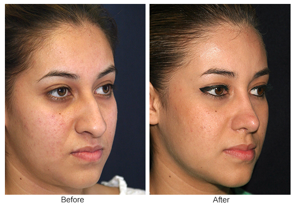 Before and After Rhinoplasty 7 – RQ