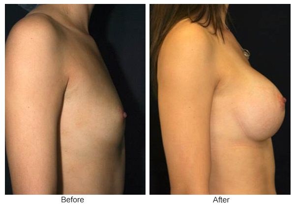 Before & After Breast Augmentation 2 – Right