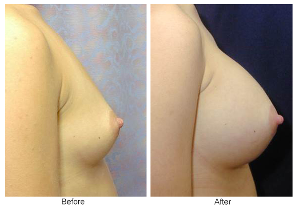 Before & After Breast Augmentation 4 – Right