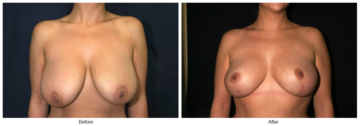 Before & After Breast Reduction 1 – Front