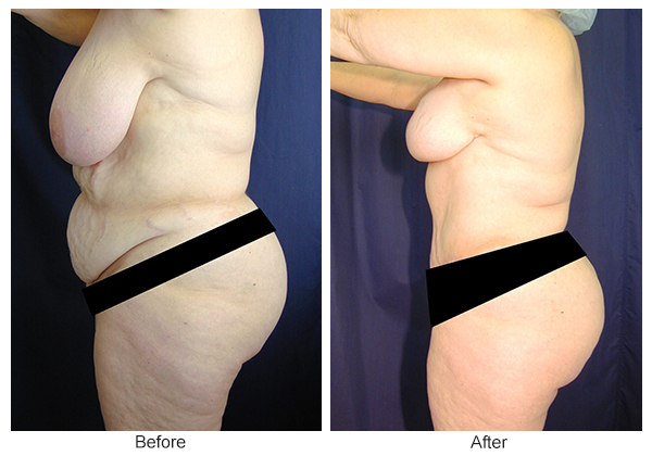 Before & After Breast Reduction 4 – Left