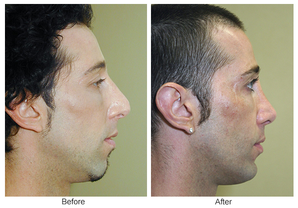 Before & After Rhinoplasty 12 – Right