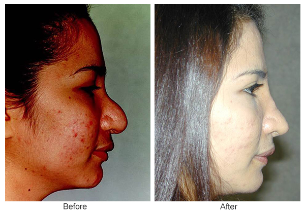 Before & After Rhinoplasty 14 – Right