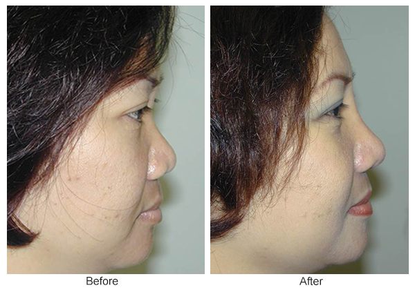 Before & After Rhinoplasty 16 – Right