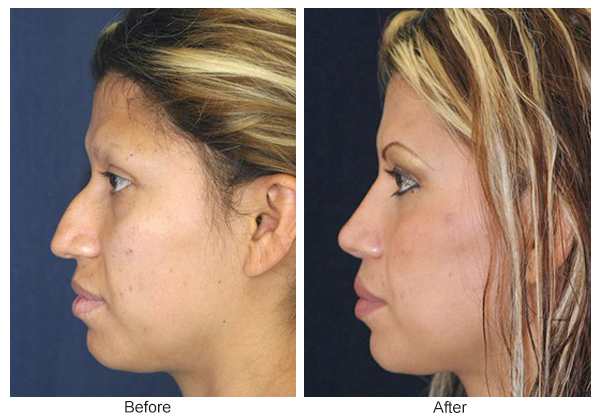 Before & After Rhinoplasty 4 – Left
