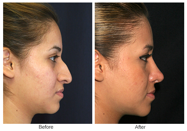 Before & After Rhinoplasty 7 – Right
