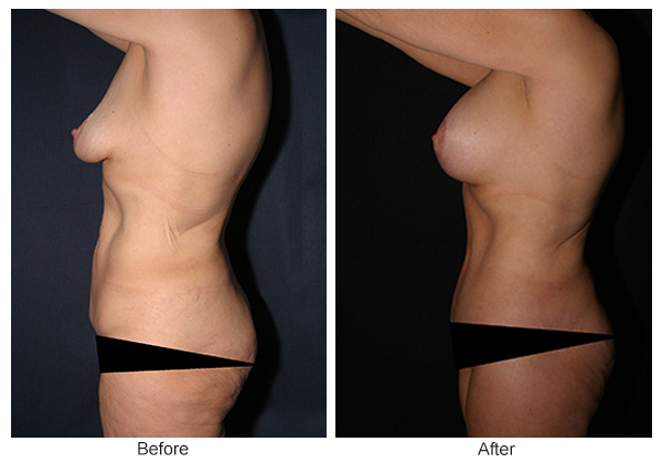 Before and After Body Lift 3 – L