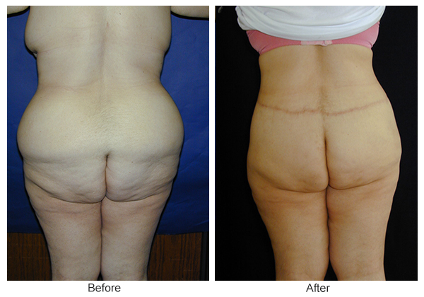Before and After Body Lift 5 – B