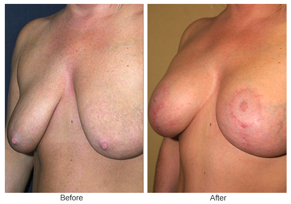 Before and After Breast Lift 1 – LQ