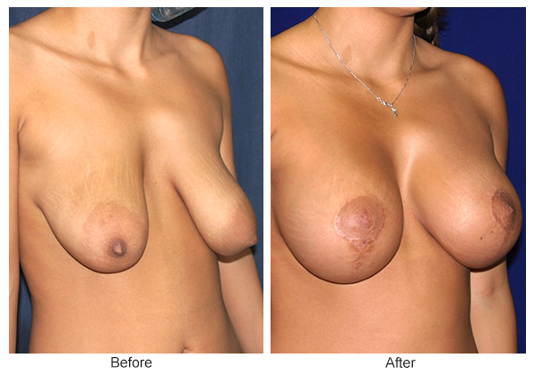 Before and After Breast Lift 2 – RQ