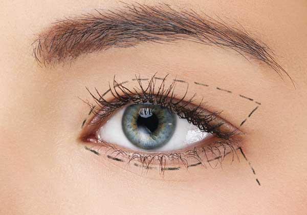 Orange County Eye Lid Surgery Gallery