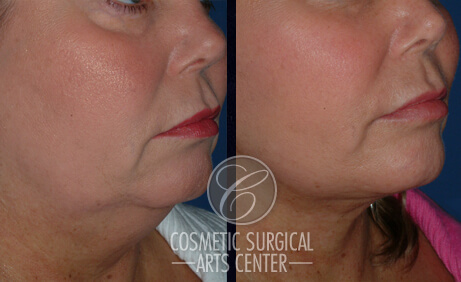 Cosmetic-Surgery-Neck-Lift-Before-After