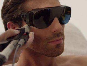 Лазерная эпиляция лица у мужчин