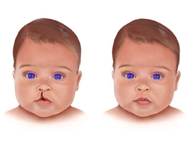 Пластика верхней губы