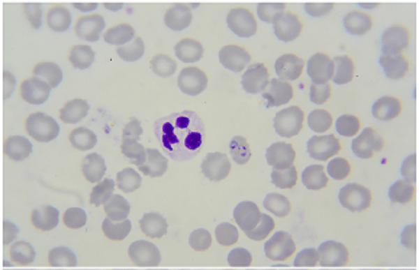 Microscopic view of malaria
