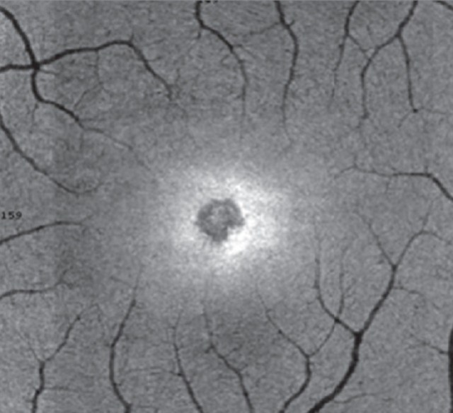 Retina burn