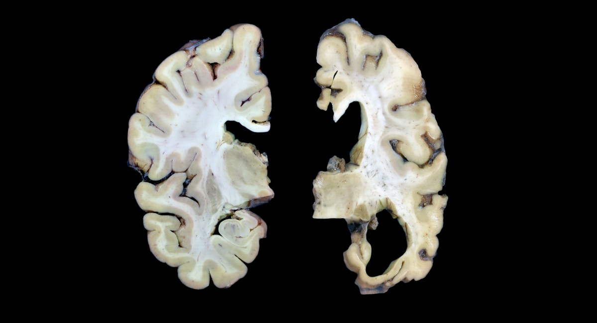 Healthy and Alzheimer's brains
