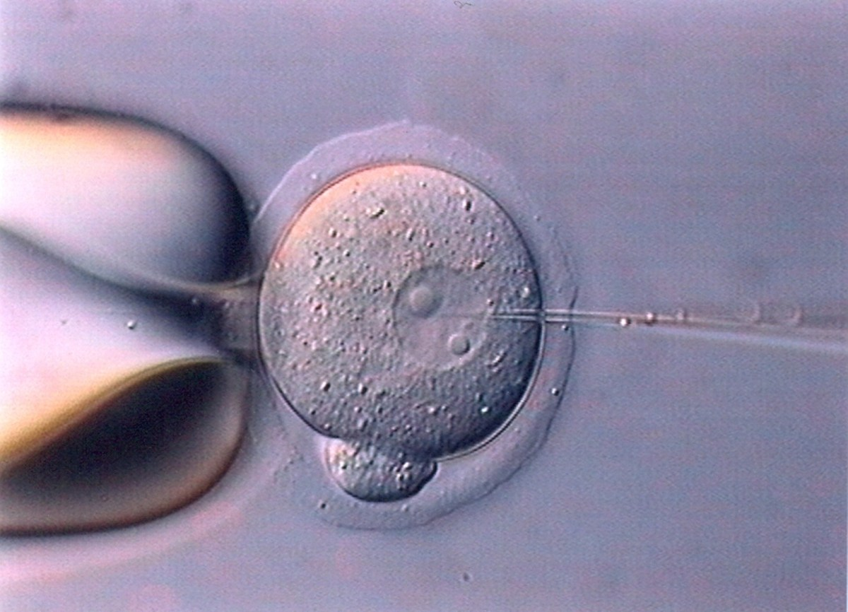 Gene-editing embryo