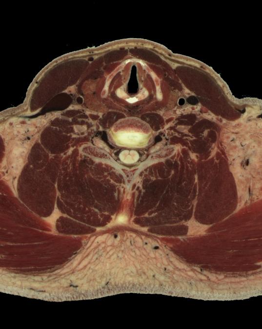 Outstanding Cross Sectional Anatomy Neck Illustration - Internal ...