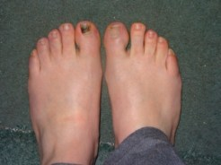 Black toe 5 months later . . .