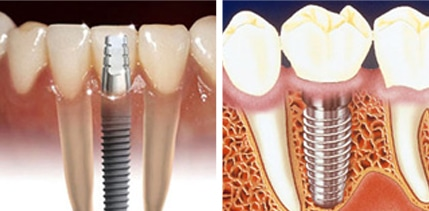 Dental Implants in Comox Valley, Courtenay Dental Health & Implant Centre