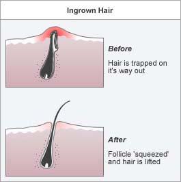Appearance Of Ingrown Hair