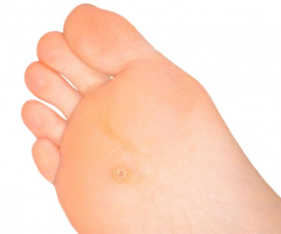 How To Get Rid Of Calluses On Feet