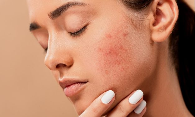 Best Herbal Remedies for Hormonal Acne and Nutritional Supplements!