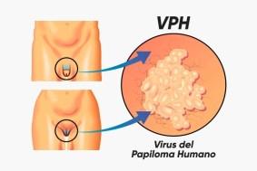 infección del virus de papiloma en Granada