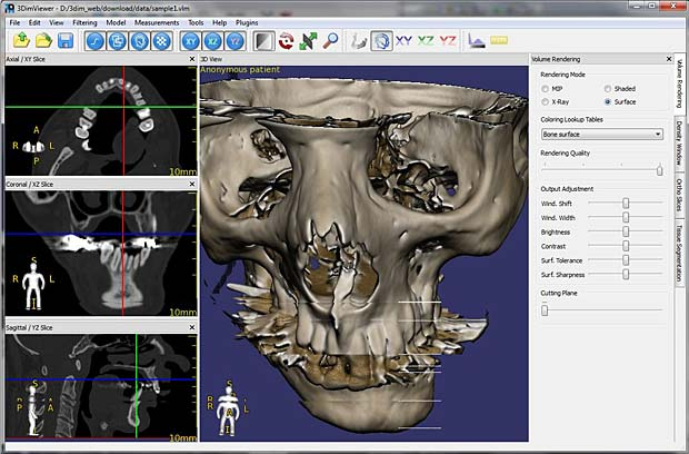 RadiAnt DICOM Viewer 2020 Crack With License Key Free Download