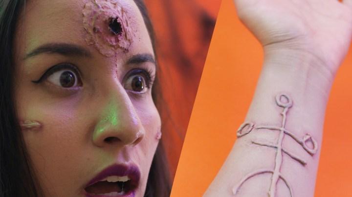 cicatrices-y-heridas-caseras