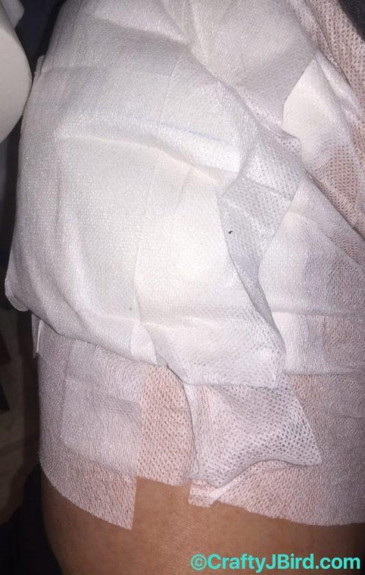 Hip Scope Surgery Part 2 -- Visit CraftyJBird.com for more info...