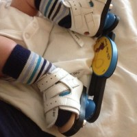 Our Clubfoot Journey: Bracing On