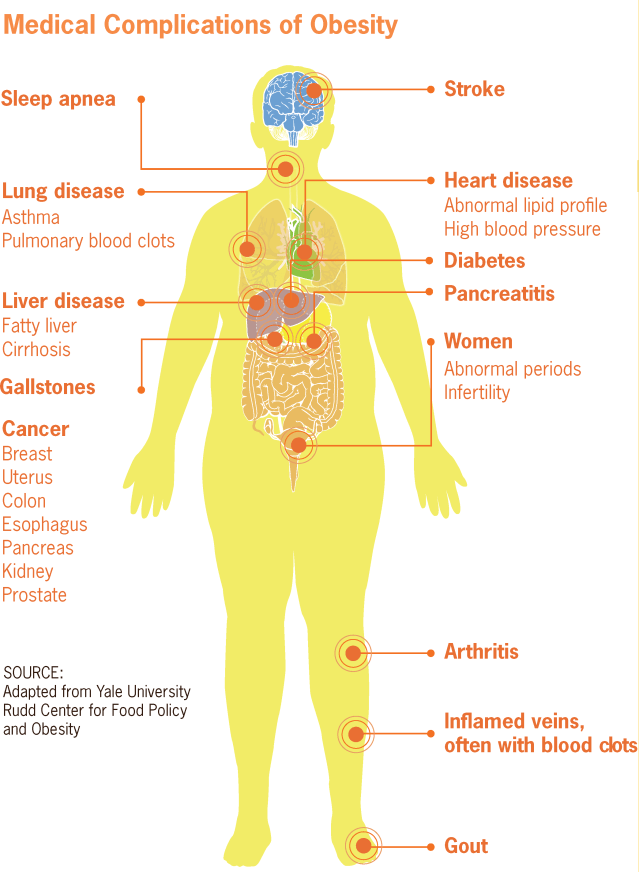 Medical_complications_of_obesity