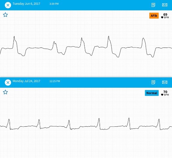 EKG Before and After